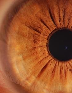 iridoscopio IRIDIGIT