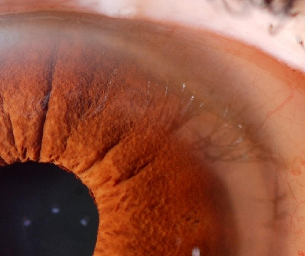 strumento per iridologia