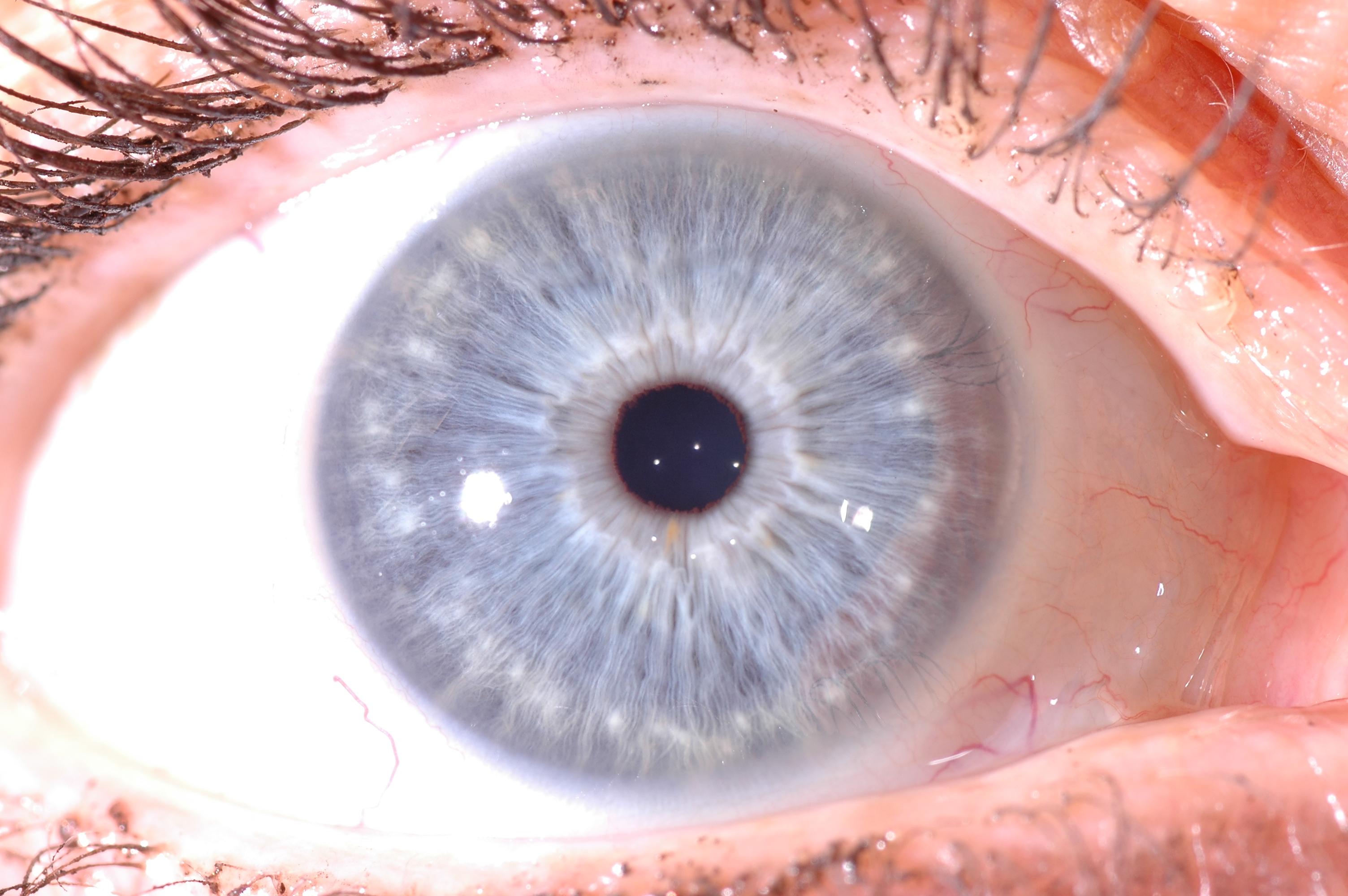 la visita iridologica