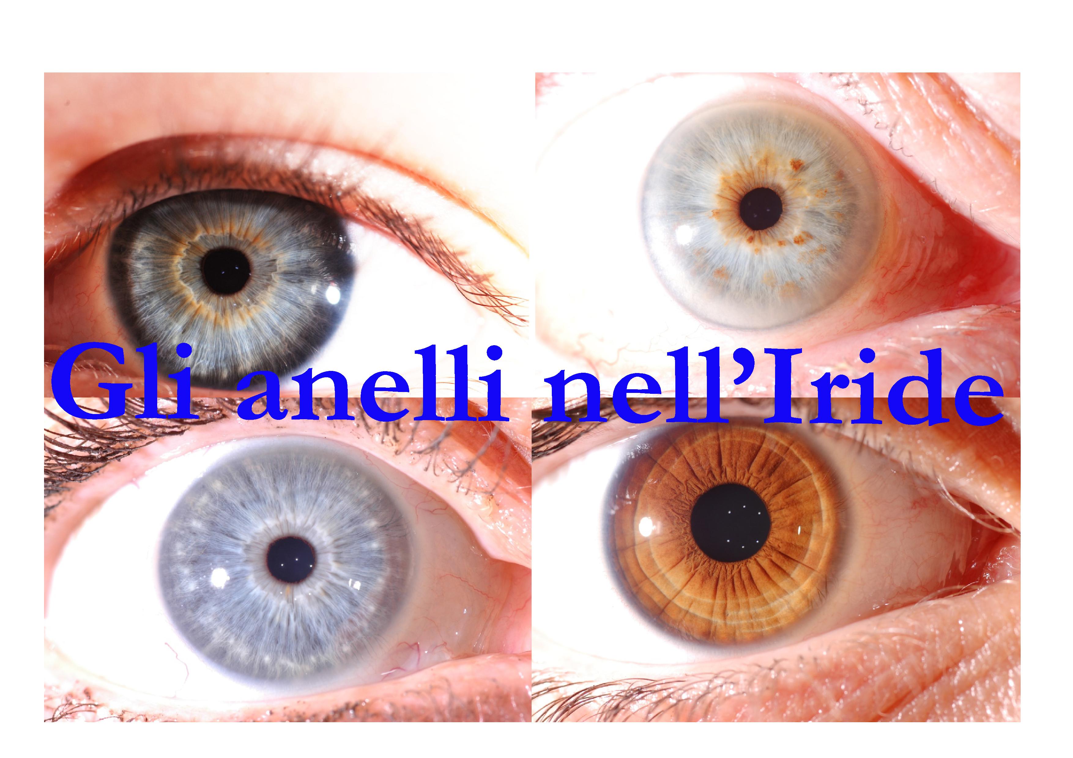 Anelli espressivi visibili negli Occhi: quattro aspetti della personalità  secondo il metodo RayId