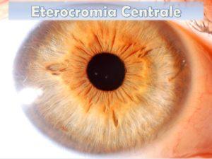 Eterocromia Centrale nell'Iride