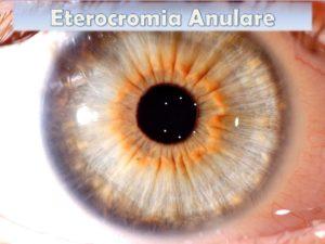 Eterocromia Anulare nell'Iride