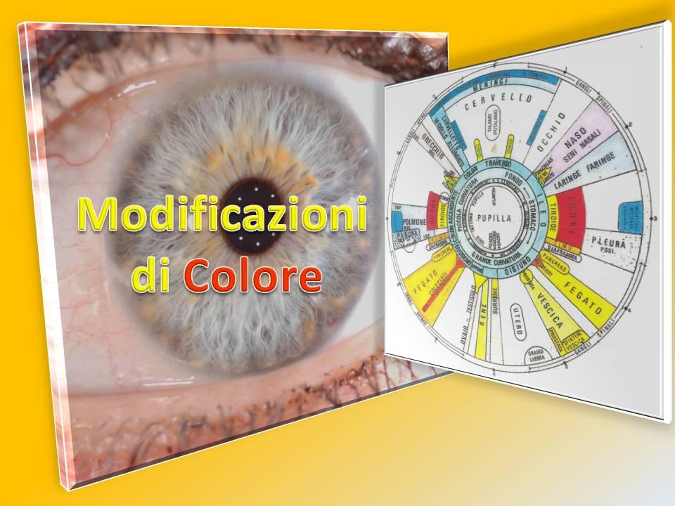 Scuola di Iridologia: I segni cromatici come Eterocromie Macchie e Pigmenti