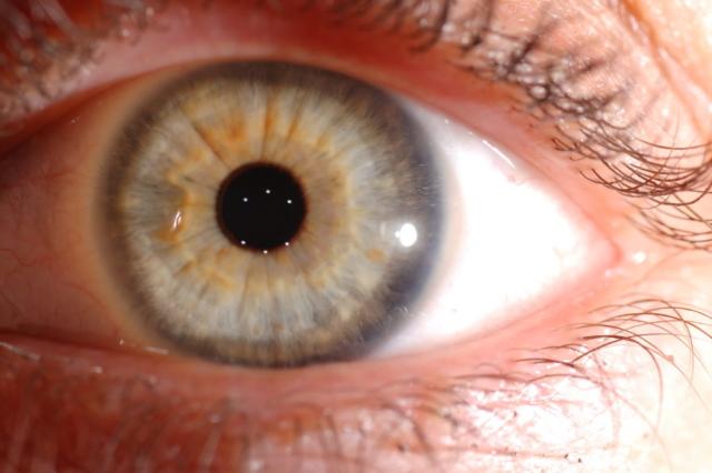 corso di iridologia