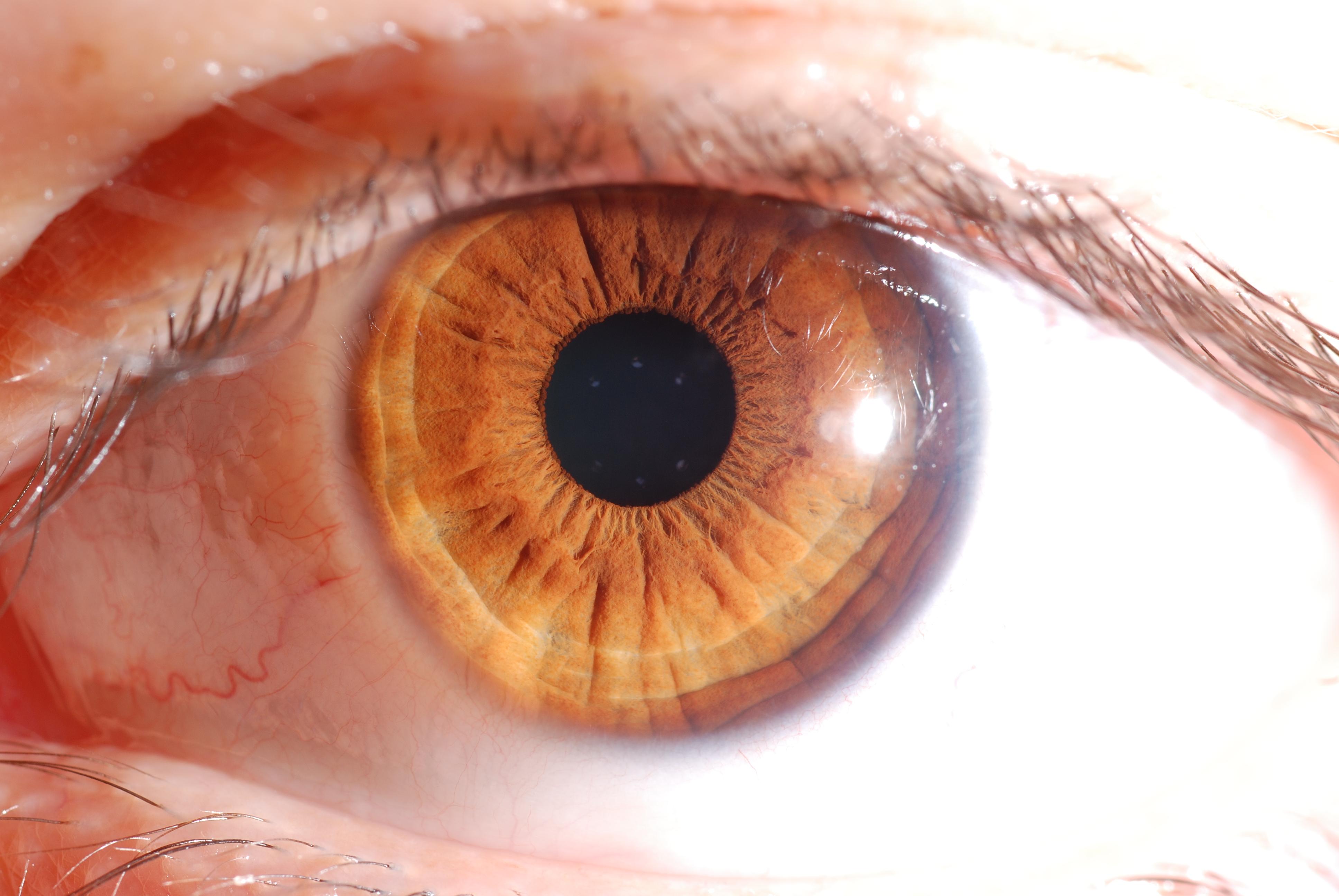 iridologo è un medico?