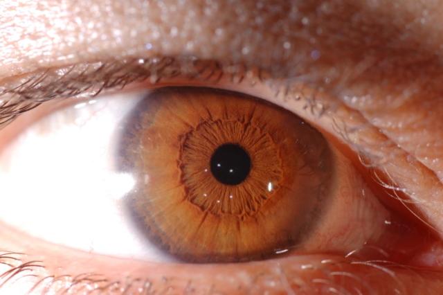 iridologia spirituale