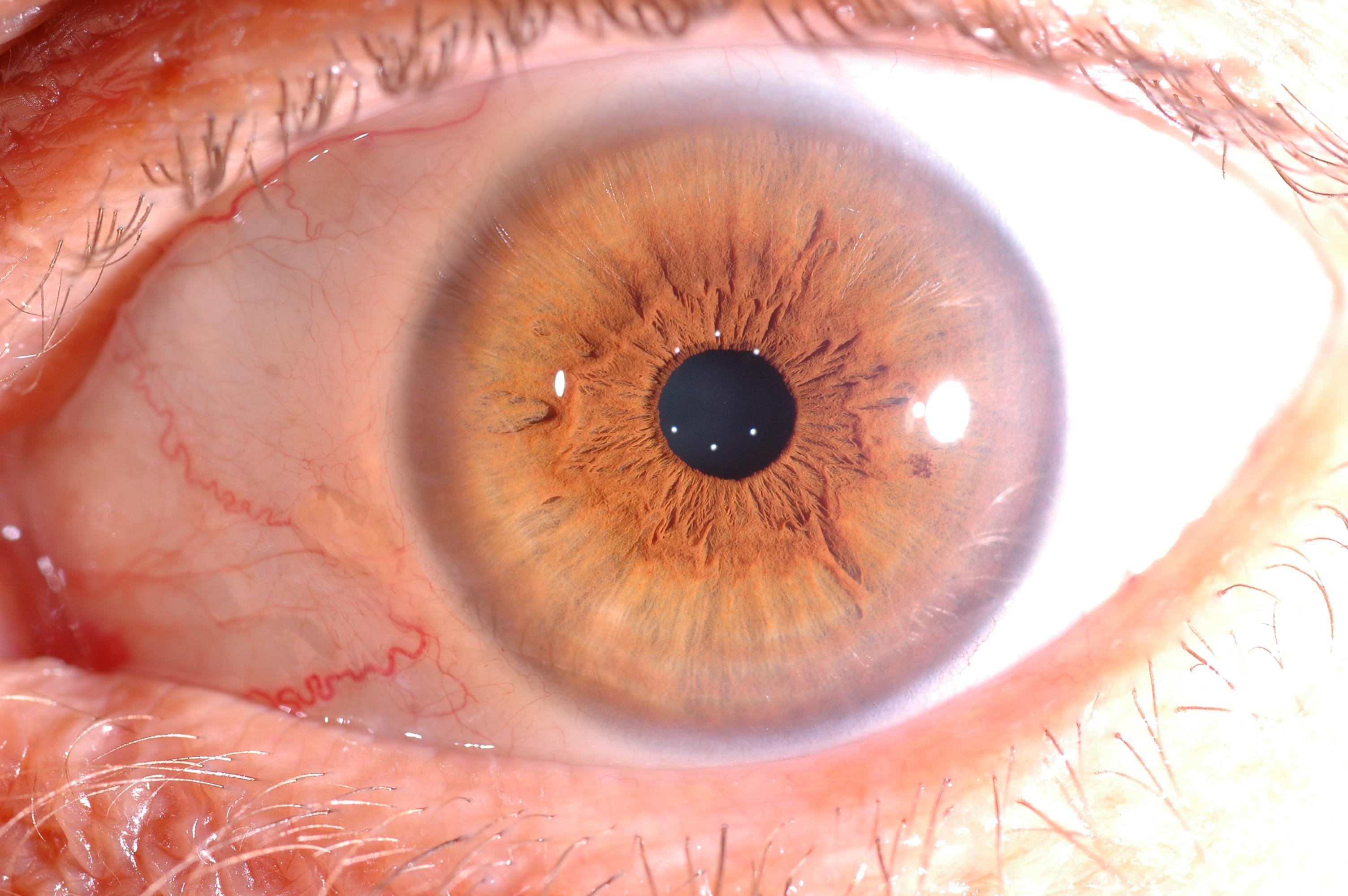 iridologia psicosomatica