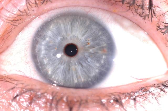 iridologia tradizionale