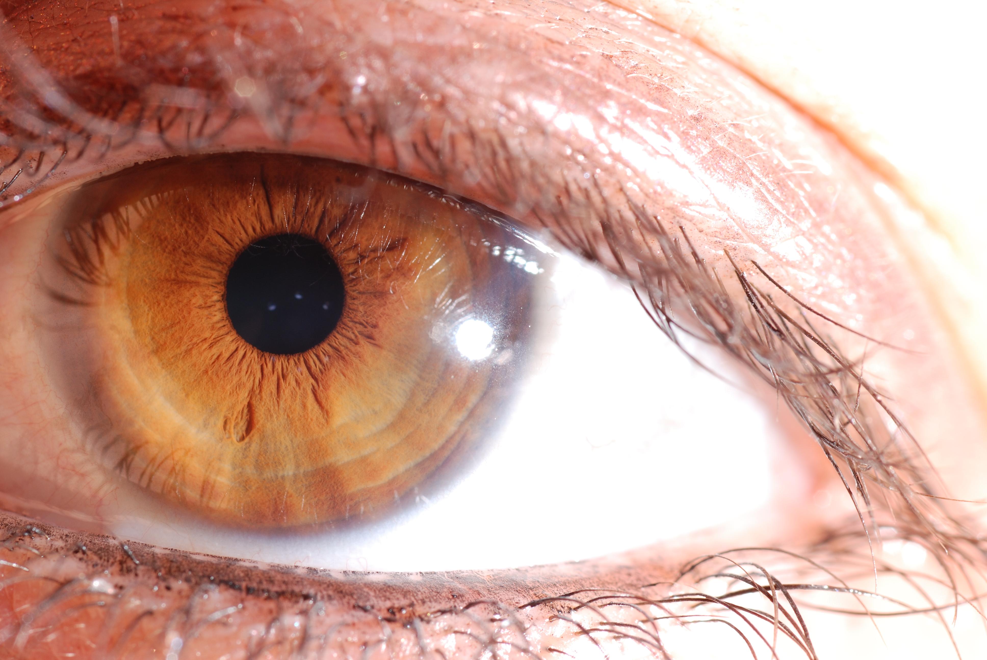 iridologia dieta
