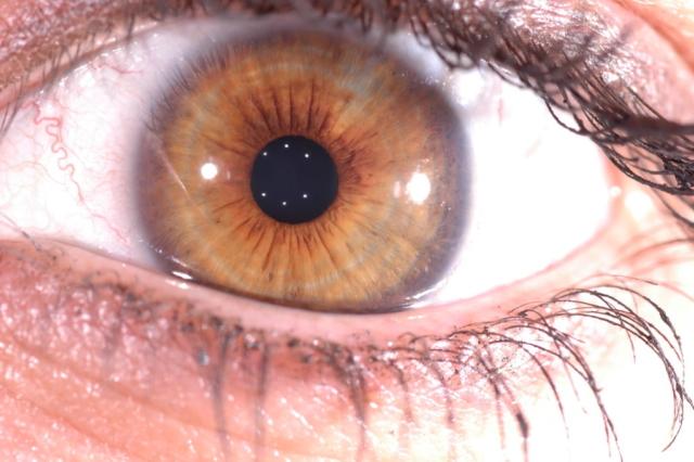 Visita iridologica