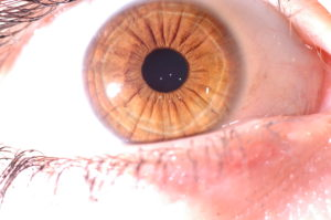 iridologia funziona