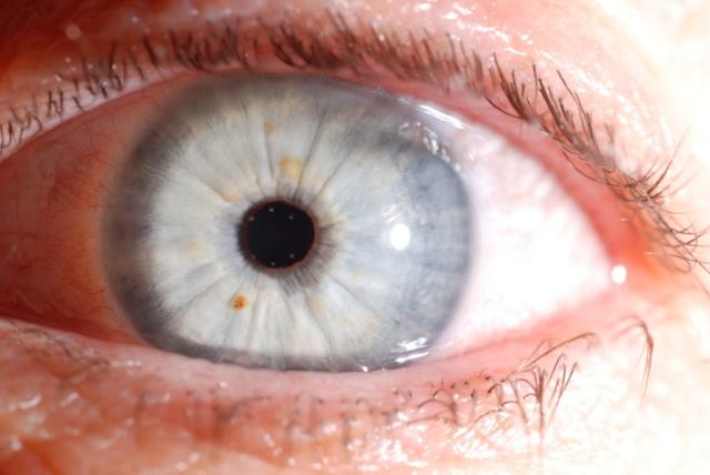 iridologia funziona?